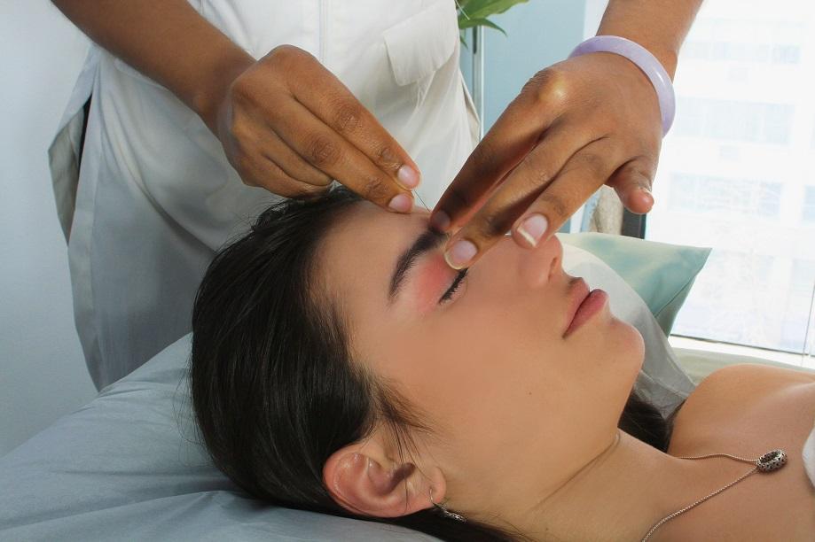 Acupuncture for Facial Rejuvenation