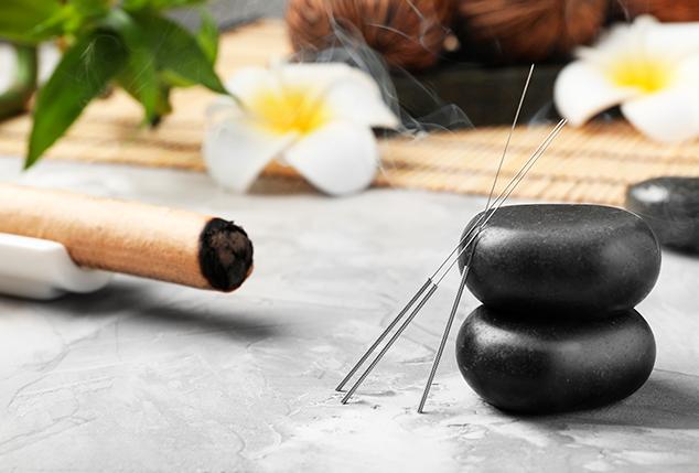 acupuncture needles on stones