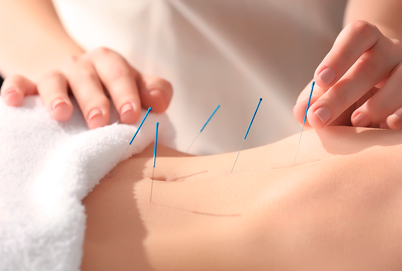 Acupuncture needles on a woman's belly