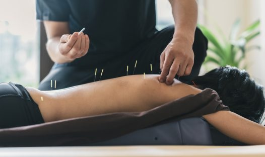 Acupuncture Scoliosis Financial District New York City