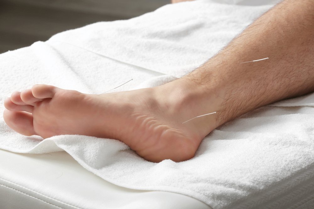 benefits acupuncture ankle injury